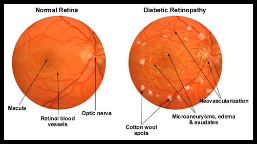 normal20and20damaged_diabetic-retinopathy
